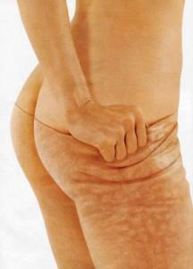 tretmani protiv celulita